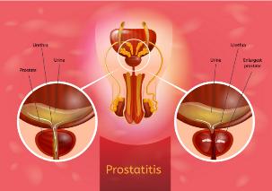Prostatitis gyógyítók